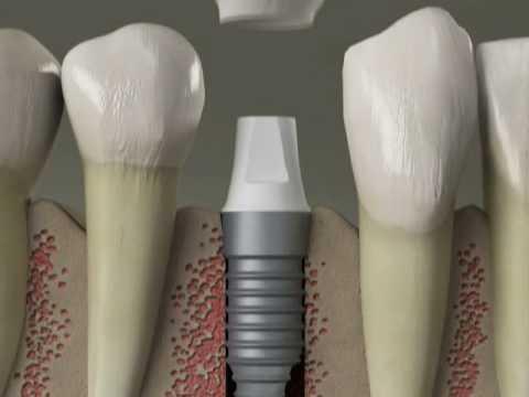 Dental Implants - Replace Missing Teeth - Procedure in Denville, NJ