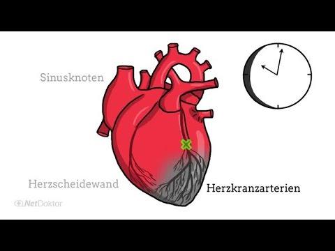 Ursachen für Bluthochdruck beim Menschen