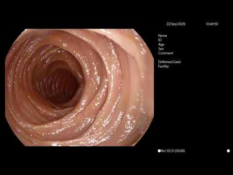 Lista bolilor de helmint