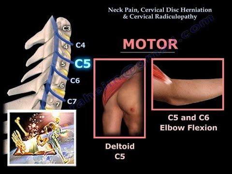 2 während der zervikalen Osteochondrose