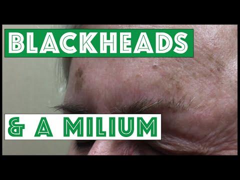 Gnarly Blackheads