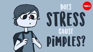 Does stress cause pimples? - Claudia Aguirre - Video Youtube