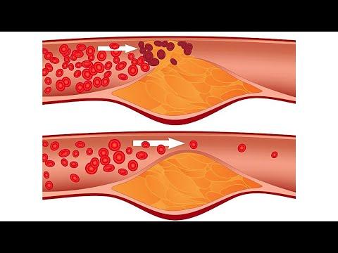 A könyökízületek deformáló artrózisa 3 fokkal