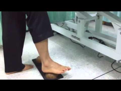 กระดูกนิ้วเท้าใหญ่ในการกำจัด
