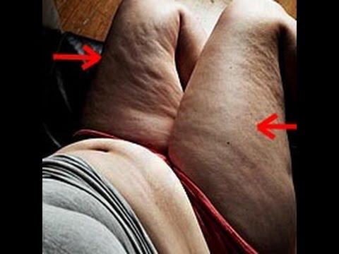 Как эффективно похудеть в дома