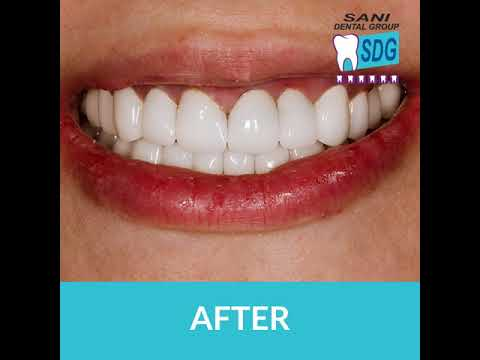 Amazing-Before-and-After-Results-at-Sani-Dental-Group-Los-Algodones-Mexico