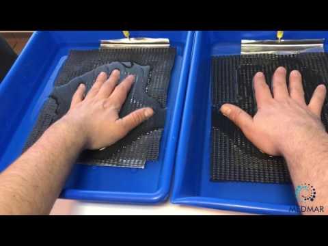 Wyprysk na dłoniach między palcami jego leczenie