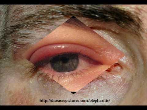 Eczema su trattamento delle dita e di mani secco