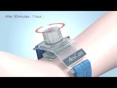 AnsCare ChitoClot Artery Compression Device