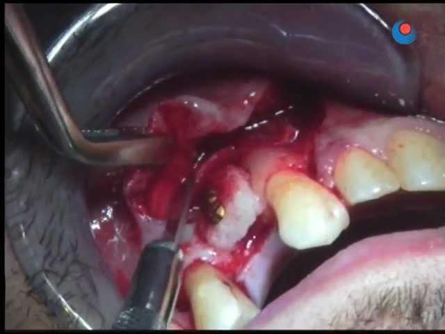 Bone graft (edentulous area) - 5
