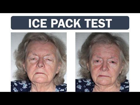 Miastenia - test lodowy