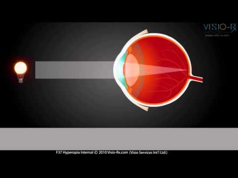 Chirurgie de sucre dans le sang sur les yeux