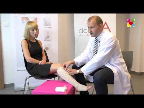Endovenous leczenie laserowe żyłach