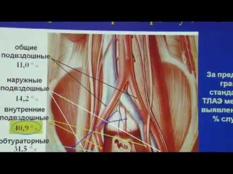 Рак предстательной и метастазы в легких