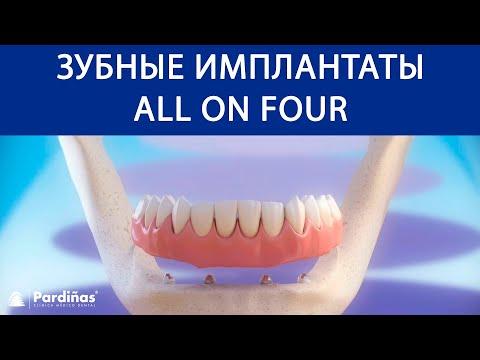 Зубные имплантаты «All on 4» ©