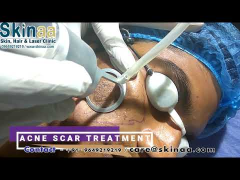 Acne Scar Laser Removal Treatment in Jaipur with Fractional Co2 FDA Approved Laser| Skinaa Clinic