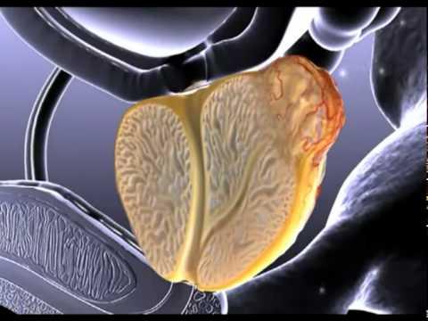 Finger Untersuchung der Prostata