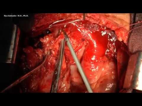 Surgery For Extragonadal Germ Cell Tumor Of Mediastinum