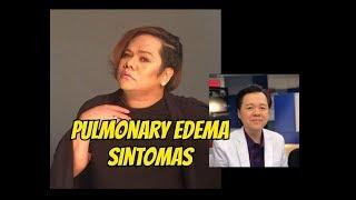 Chokoleit : Pulmonary Edema Sanhi ng Pagkamatay - ni Doc Willie Ong #680