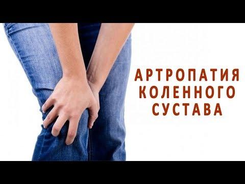 Что нужно знать об артропатии коленного сустава