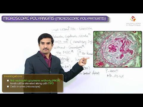A prosztatagyulladás diagnózisa vizelettel