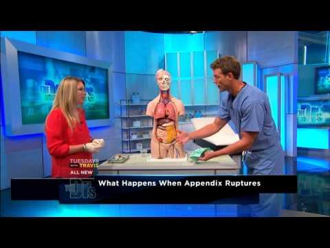 Appendicitis Explained Medical Course