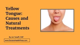 Yellow Tongue: Causes and Treatments | Doctors Health Press