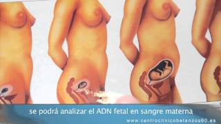 Control del embarazo en el Centro Clinico Betanzos 60 - Juan Betancor Jiménez
