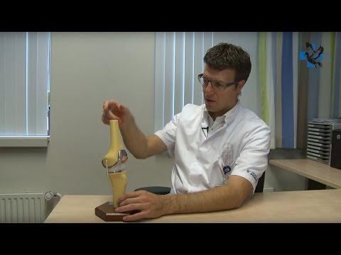 Osteochondrose Schädel Behandlung
