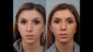 Teenage Female Rhinoplasty by Dr. Edwin Williams