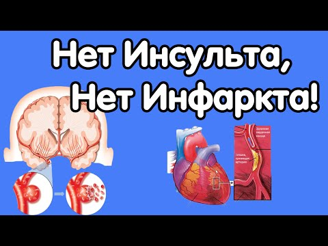 Vererõhu ja südame