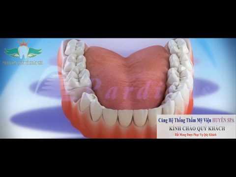 Trồng Răng Sứ Và Hậu Quả Mất Răng - NHA KHOA QUỐC TẾ KHẮC GHI