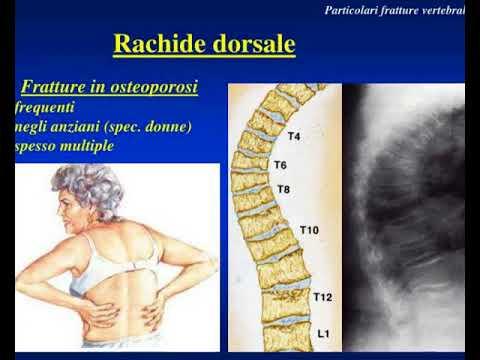 Dolore da cancro alla schiena