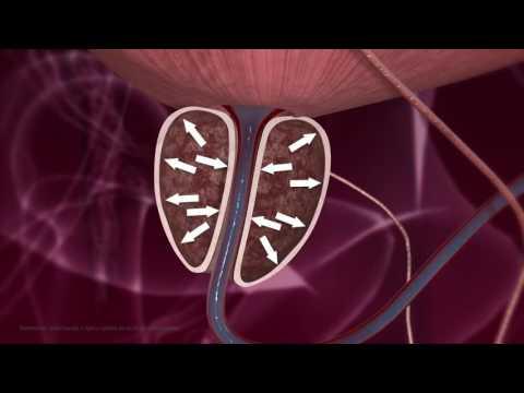 Entzündung der Prostata verletzt