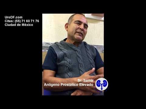 Guanti mungitura della prostata