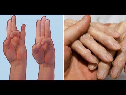 Лечение печени препараты лив-52