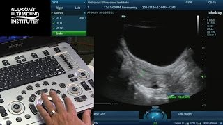 Hot Tips - Measuring the Endometrium