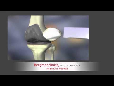 Verband auf dem Kniegelenk Video