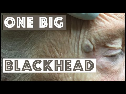 One Mother of a Blackhead!
