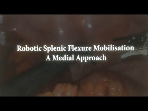 Robotic splenic flexure mobilization: A medial approach