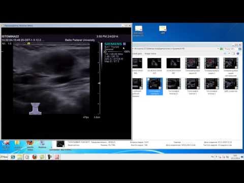 Доброкачественная гиперплазия предстательной железы дифференциальная