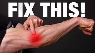How to Fix Tennis Elbow (PERMANENTLY!)