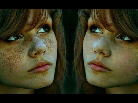 Opalania na twarz z plam pigmentowych
