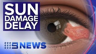 New drops could delay surgery for 'Surfer's Eye' condition | Nine News Australia