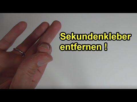 Als stschischtschat die Nägel bei gribke