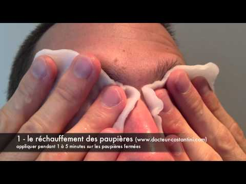 Comme traiter le psoriasis neoumyvakin
