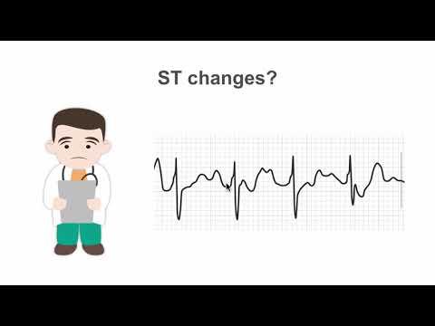 Hipertenzija ir treniruoklis