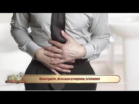 Evgeny lebedev tratamentul varicozei