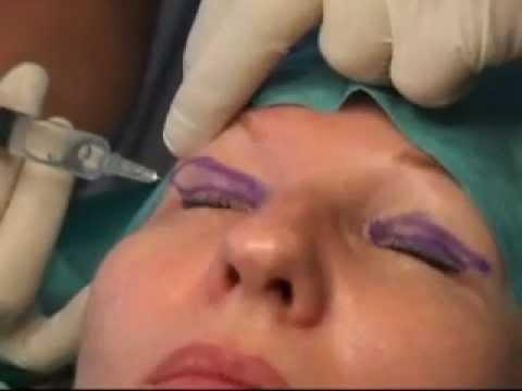 Le peeling laser de la personne zaporoje