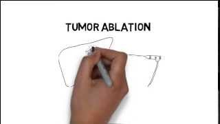What is Interventional Radiology